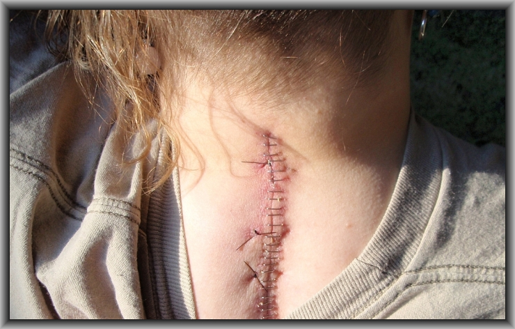 Neck Surgery Staples by Crystal A Murray as Flickr User CrystalWriter, CC License = Attribution, Noncommercial, Share Alike